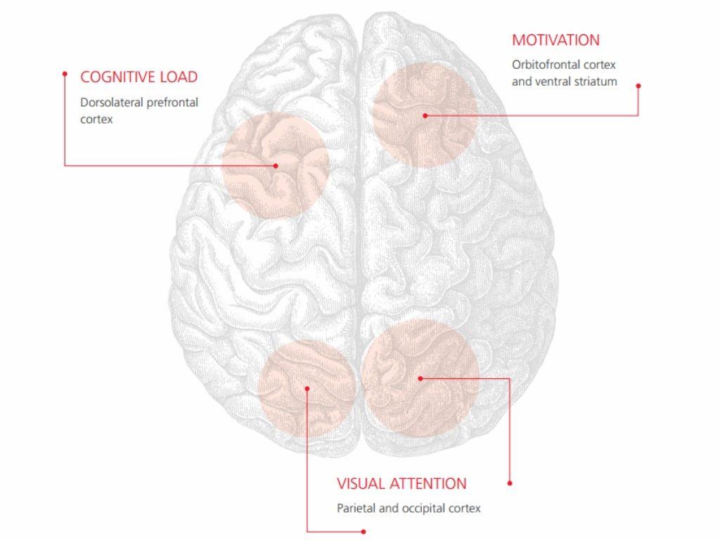 canada-brain-study-1024